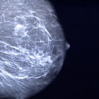 The Year Of The Mammogram